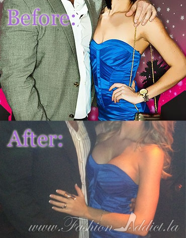 Before-After-Blue-Dress